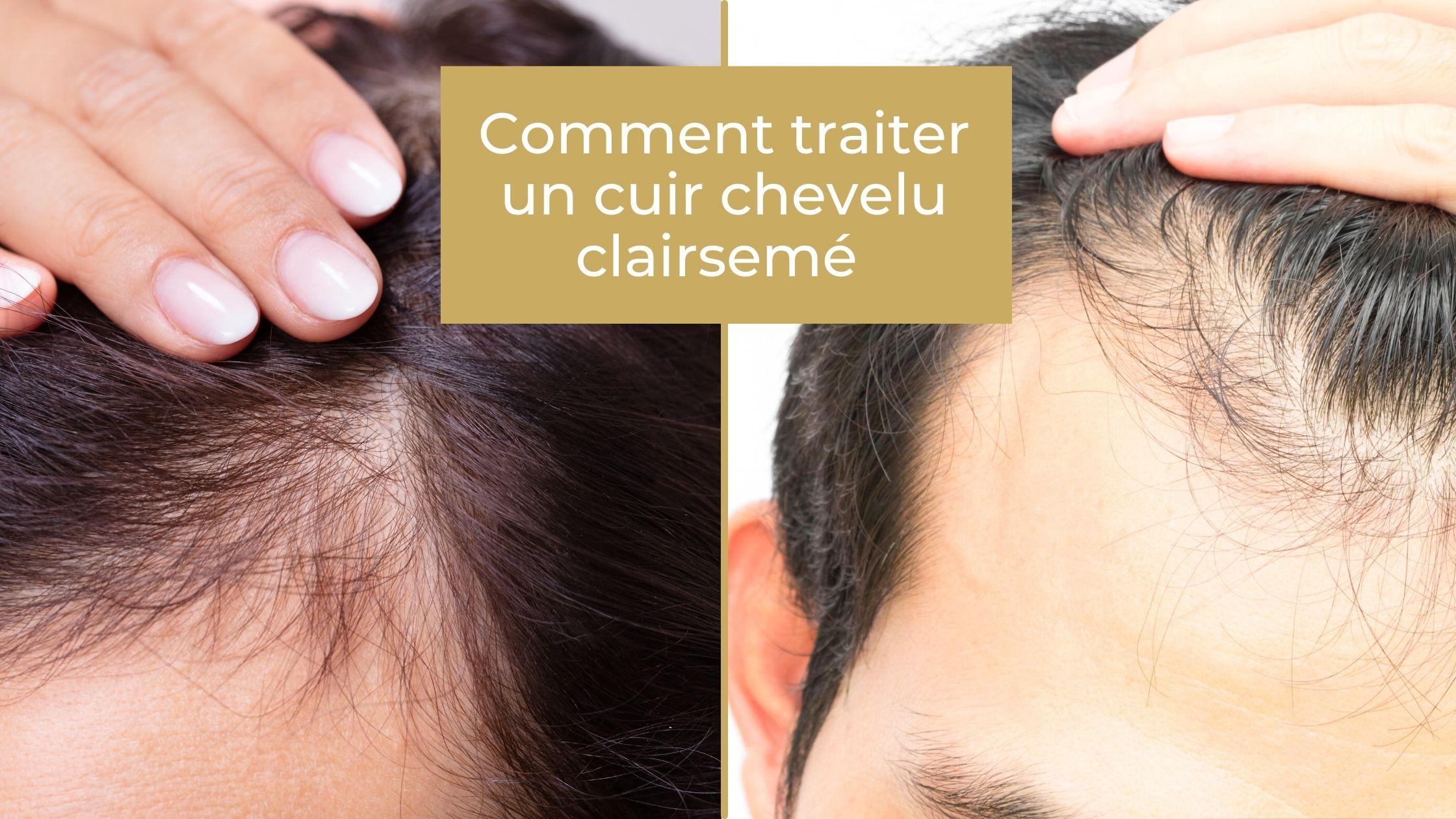 Comment traiter un cuir chevelu clairsemé